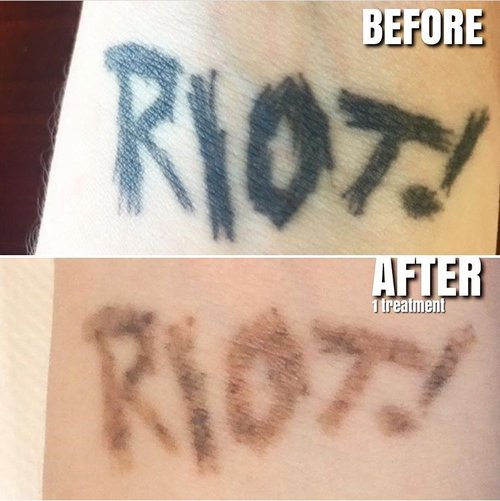 Adelaide tattoo removal